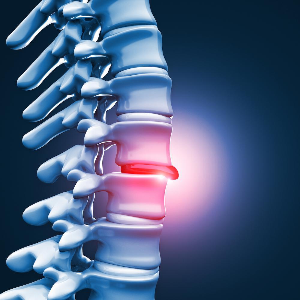 Tot ce trebuie sa stii despre simptome si cauze hernie de disc