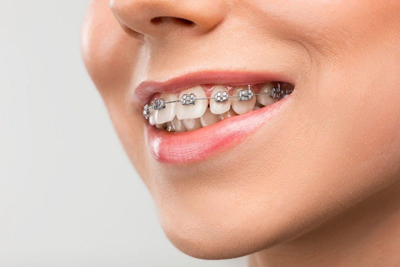 Ce este un aparat dentar mobil si care sunt beneficiile?